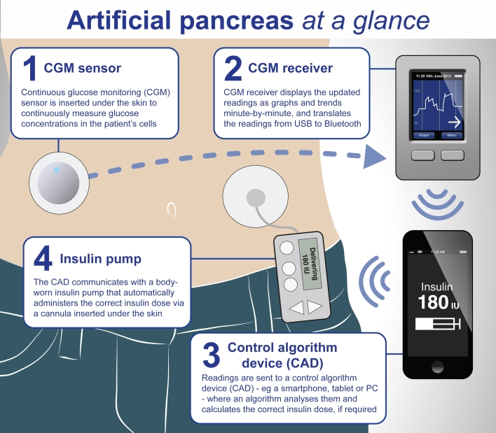 Artificial pancreas system