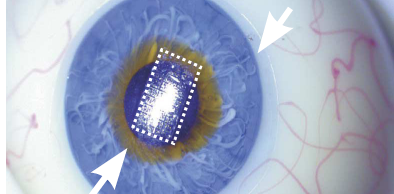 Circuit on contact lens
