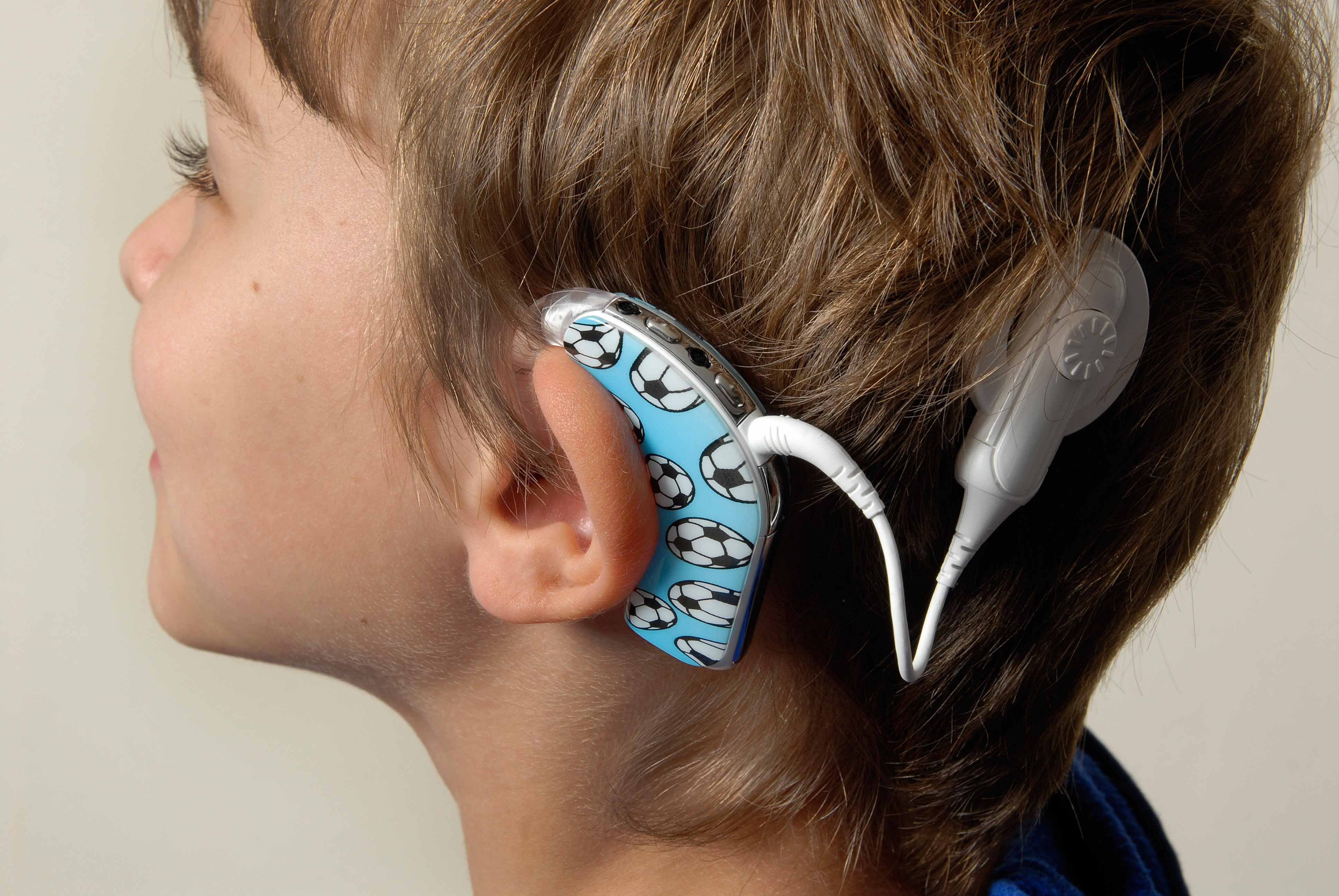 external image cochlear-implant.jpg